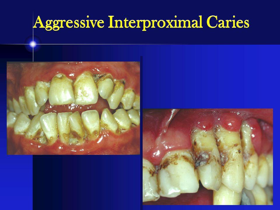 Aggressive Interproximal Caries