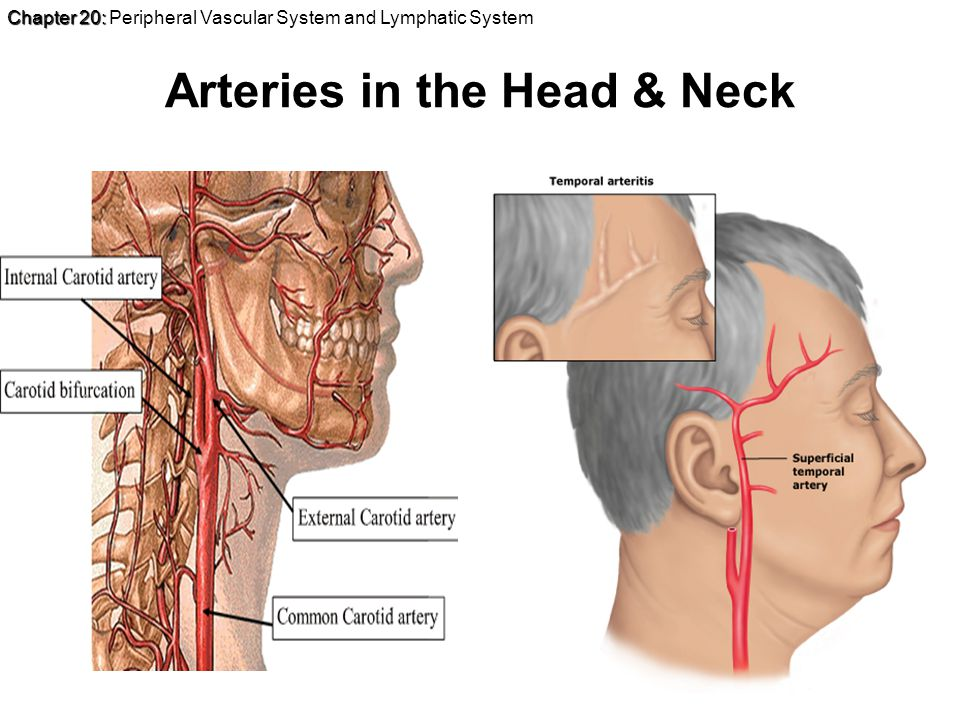 Chapter 20: Chapter 20: Peripheral Vascular System and Lymphatic System Arteries in the Head & Neck
