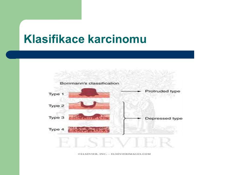 Klasifikace karcinomu