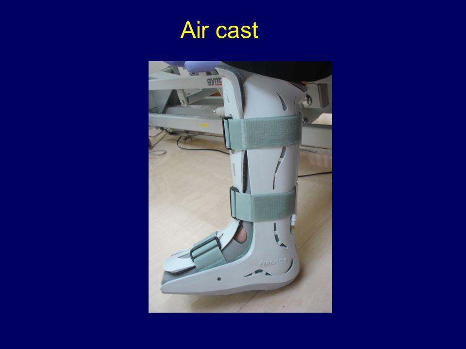 Air cast