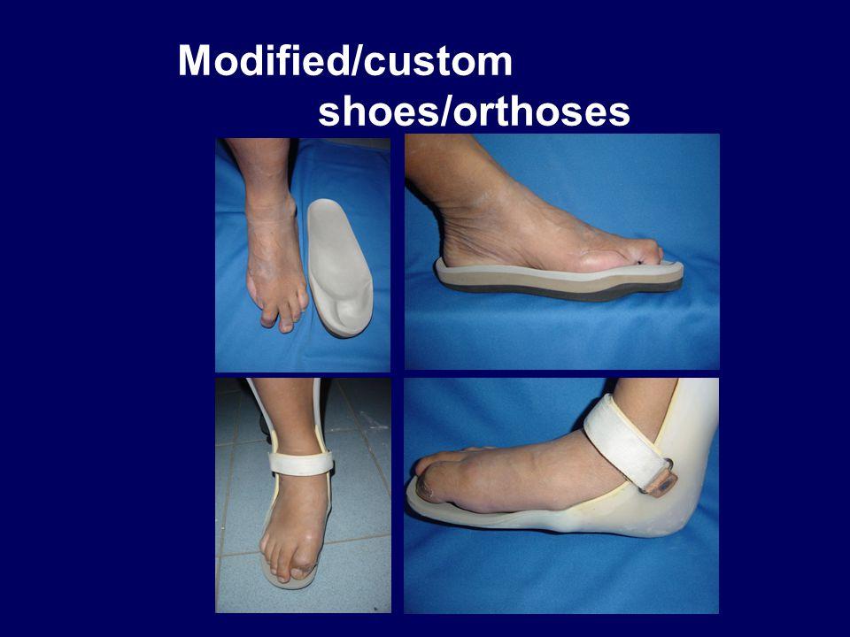 Modified/custom shoes/orthoses