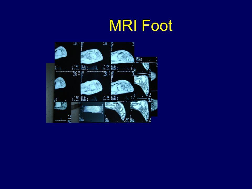 MRI Foot