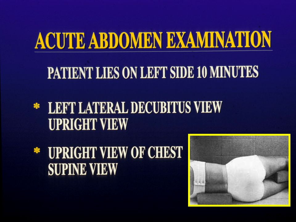 68-YEAR –OLD MAN SUDDEN ONSET OF SEVERE ABDOMINAL PAIN