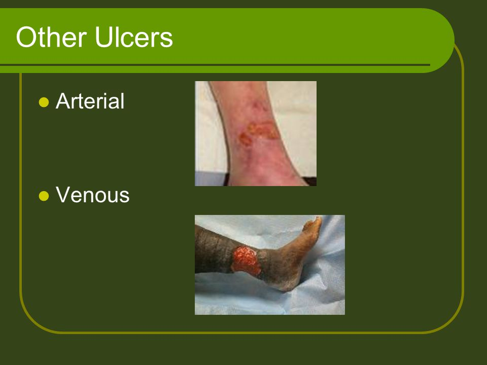 Other Ulcers Arterial Venous