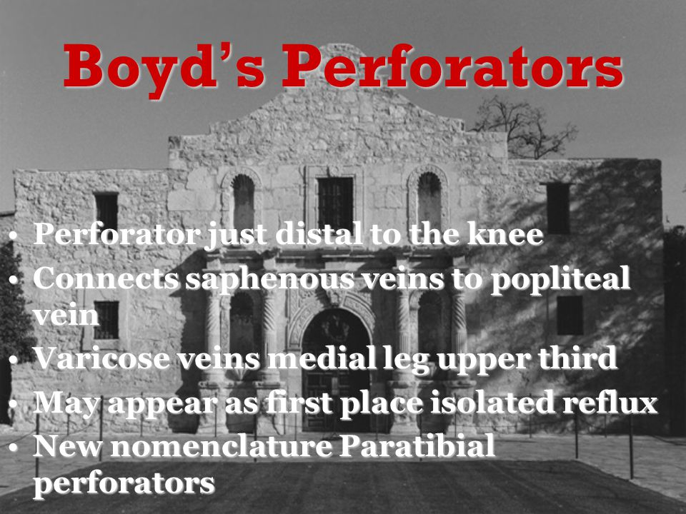Boyd's Perforators Perforator just distal to the kneePerforator just distal to the knee Connects saphenous veins to popliteal veinConnects saphenous veins to popliteal vein Varicose veins medial leg upper thirdVaricose veins medial leg upper third May appear as first place isolated refluxMay appear as first place isolated reflux New nomenclature Paratibial perforatorsNew nomenclature Paratibial perforators
