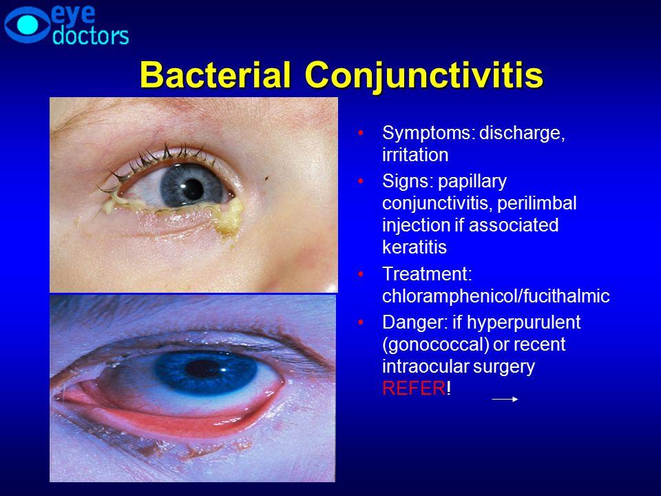 Bacterial Conjunctivitis Symptoms: discharge, irritation Signs: papillary conjunctivitis, perilimbal injection if associated keratitis Treatment: chlo