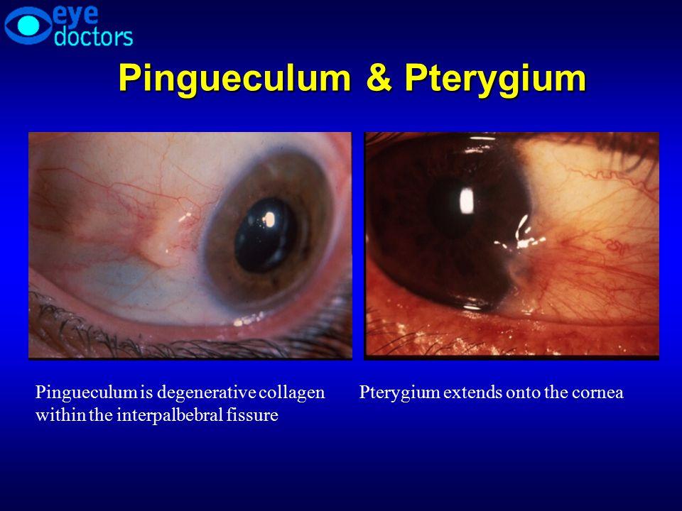 Pingueculum & Pterygium Pingueculum is degenerative collagen within the interpalbebral fissure Pterygium extends onto the cornea