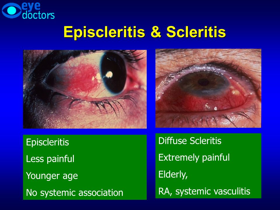 Episcleritis & Scleritis Episcleritis Less painful Younger age No systemic association Diffuse Scleritis Extremely painful Elderly, RA, systemic vascu