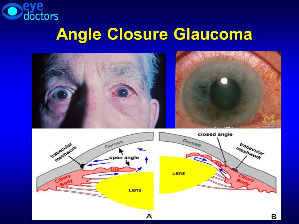 Angle Closure Glaucoma