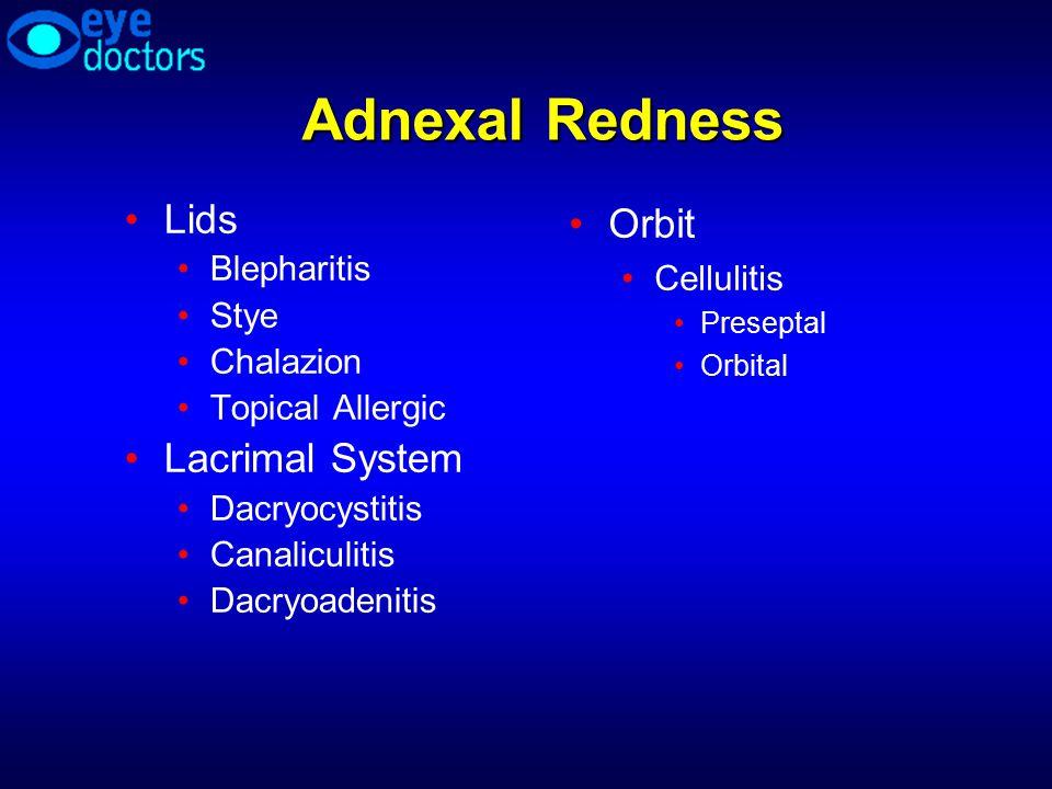 Adnexal Redness Lids Blepharitis Stye Chalazion Topical Allergic Lacrimal System Dacryocystitis Canaliculitis Dacryoadenitis Orbit Cellulitis Presepta