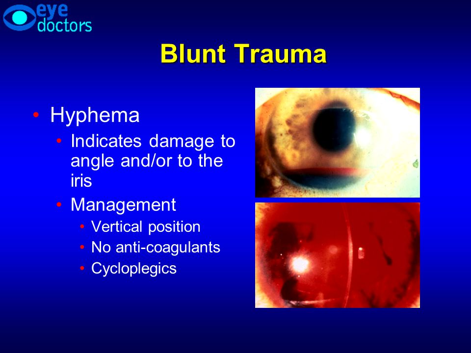 Blunt Trauma Hyphema Indicates damage to angle and/or to the iris Management Vertical position No anti-coagulants Cycloplegics