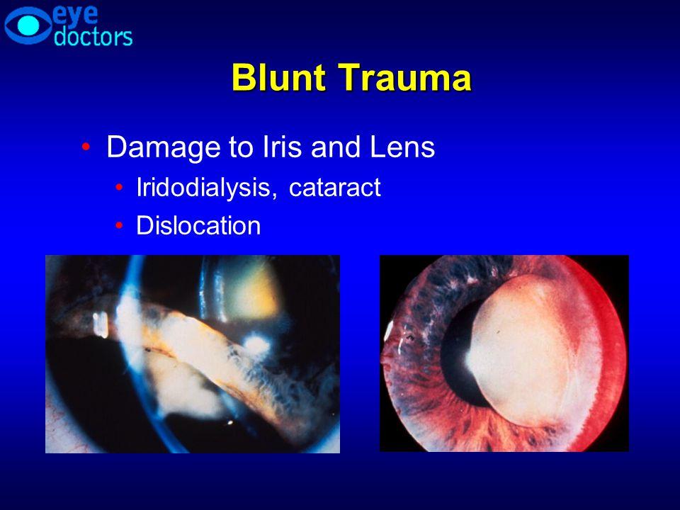 Blunt Trauma Damage to Iris and Lens Iridodialysis, cataract Dislocation