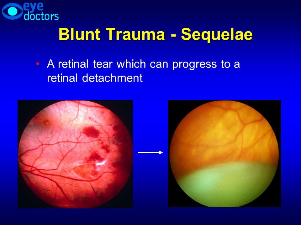 Blunt Trauma - Sequelae A retinal tear which can progress to a retinal detachment