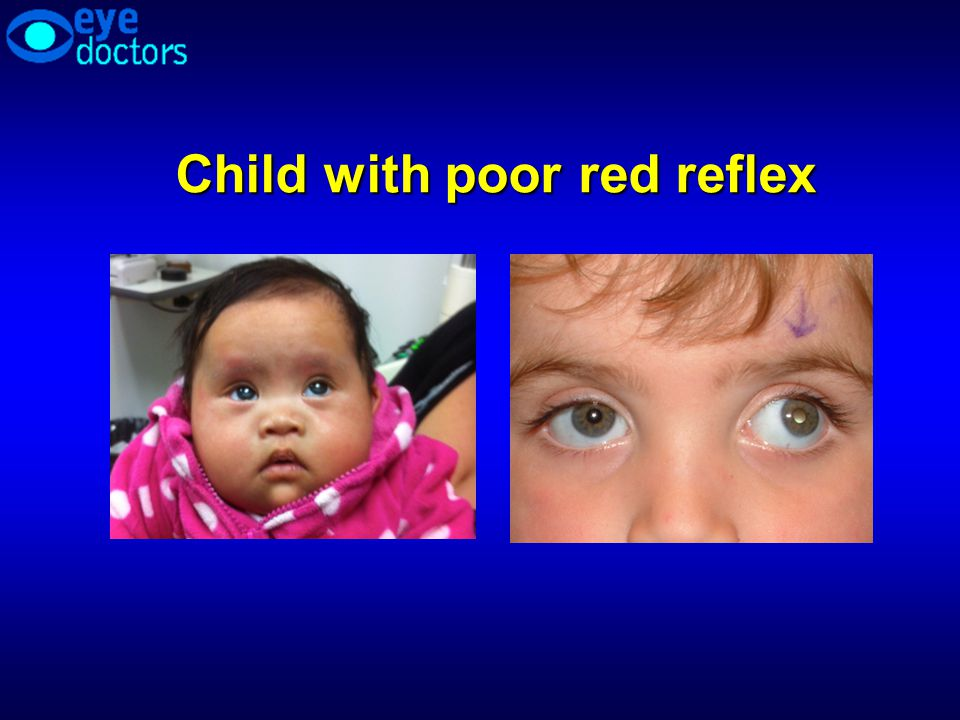 Child with poor red reflex