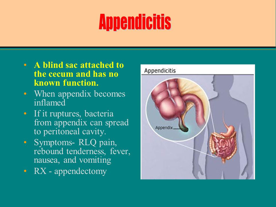 A blind sac attached to the cecum and has no known function. When appendix becomes inflamed If it ruptures, bacteria from appendix can spread to perit