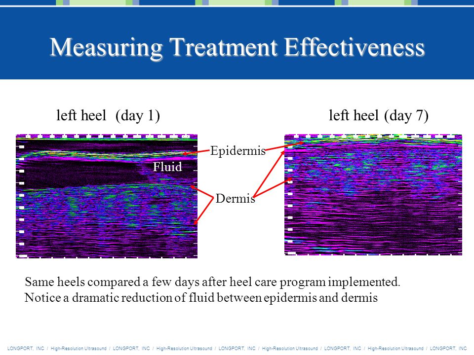 LONGPORT, INC / High-Resolution Ultrasound / LONGPORT, INC / High-Resolution Ultrasound / LONGPORT, INC / High-Resolution Ultrasound / LONGPORT, INC / High-Resolution Ultrasound / LONGPORT, INC Measuring Treatment Effectiveness Epidermis Fluid Dermis left heel (day 1)left heel (day 7) Same heels compared a few days after heel care program implemented.