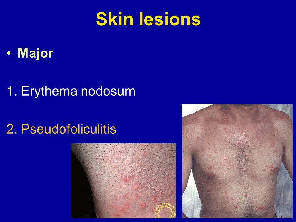 Skin lesions Major 1. Erythema nodosum 2. Pseudofoliculitis