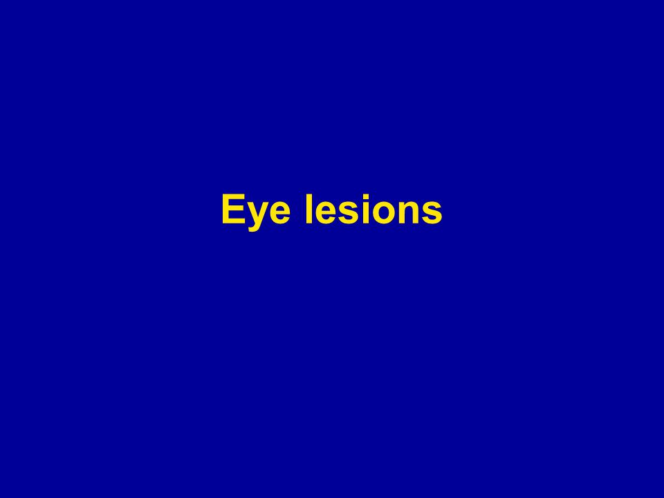 Eye lesions