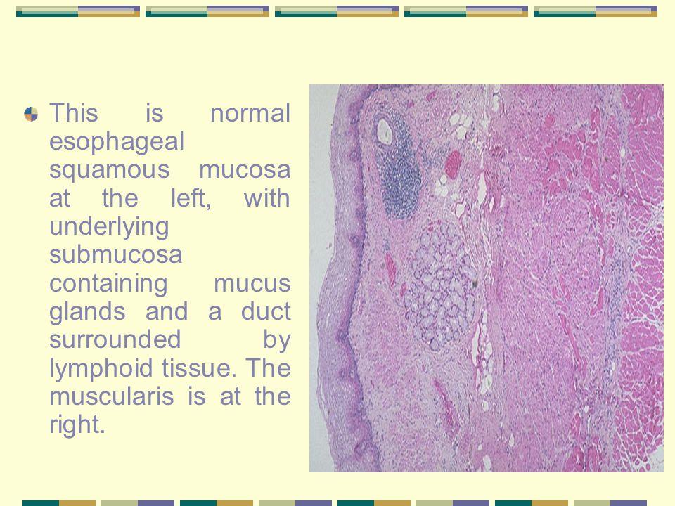 Esophagitis Reflux esophagitis: Reflux of gastric contents (e.g.