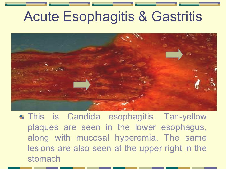 Acute Esophagitis & Gastritis This is Candida esophagitis. Tan-yellow plaques are seen in the lower esophagus, along with mucosal hyperemia. The same