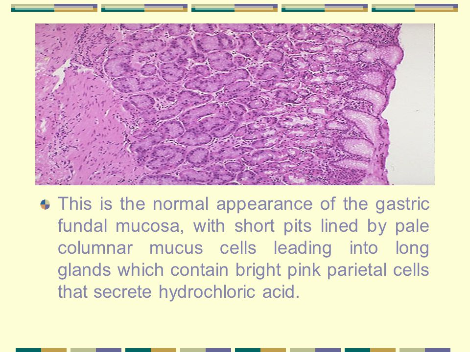 Acute Gastritis This is a typical acute gastritis with a diffusely hyperemic gastric mucosa.