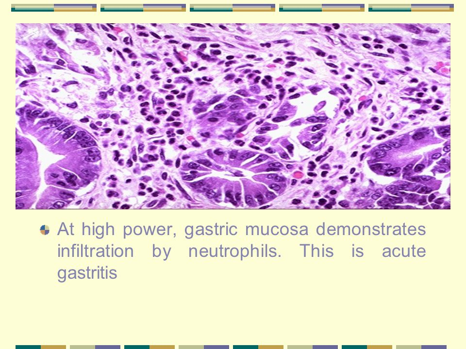 At high power, gastric mucosa demonstrates infiltration by neutrophils. This is acute gastritis