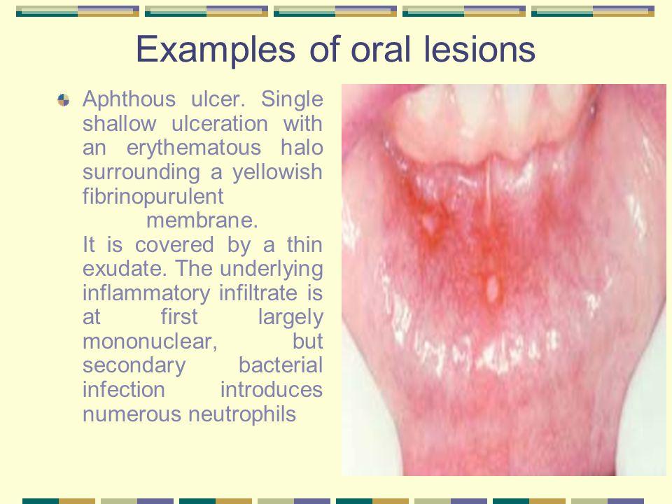 Pyogenic granuloma.Erythematous, hemorrhagic, and exophytic mass arising from the gingival mucosa.