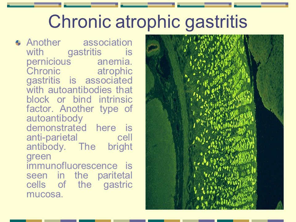 Chronic atrophic gastritis Another association with gastritis is pernicious anemia. Chronic atrophic gastritis is associated with autoantibodies that