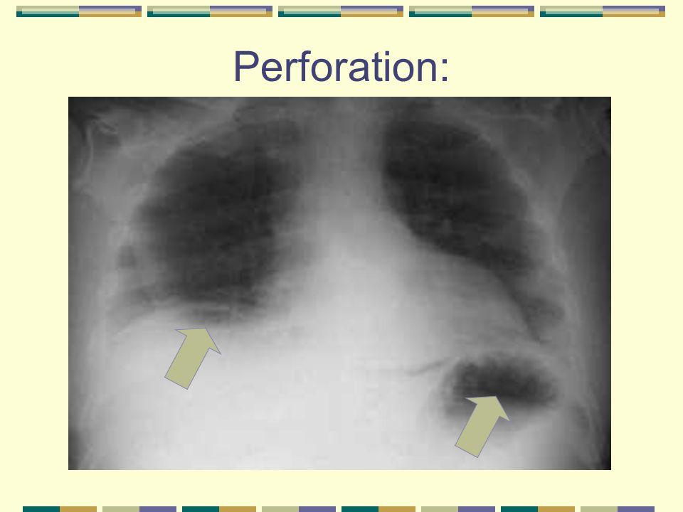 Tumors Benign tumors include: Non-neoplastic polyps (e.g.