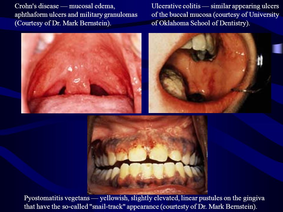 Crohn s disease — mucosal edema, aphthaform ulcers and military granulomas (Courtesy of Dr.