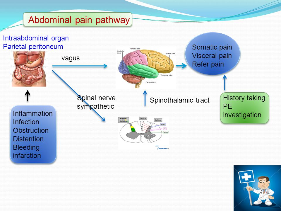 Abdominal pain pathway Inflammation Infection Obstruction Distention Bleeding infarction Intraabdominal organ Parietal peritoneum Spinothalamic tract