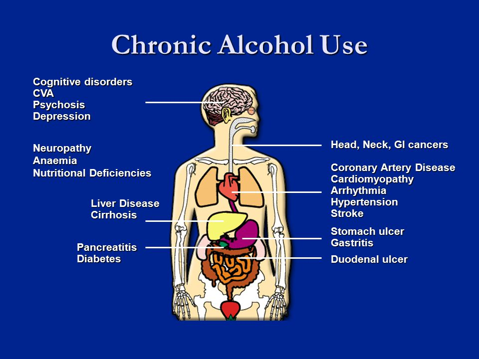 Chronic Alcohol Use Liver Disease Cirrhosis Coronary Artery Disease Cardiomyopathy Arrhythmia Hypertension Stroke Duodenal ulcer Cognitive disorders CVA Psychosis Depression PancreatitisDiabetes Head, Neck, GI cancers Stomach ulcer Gastritis NeuropathyAnaemia Nutritional Deficiencies