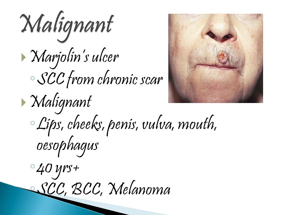  Marjolin's ulcer ◦ SCC from chronic scar  Malignant ◦ Lips, cheeks, penis, vulva, mouth, oesophagus ◦ 40 yrs+ ◦ SCC, BCC, Melanoma