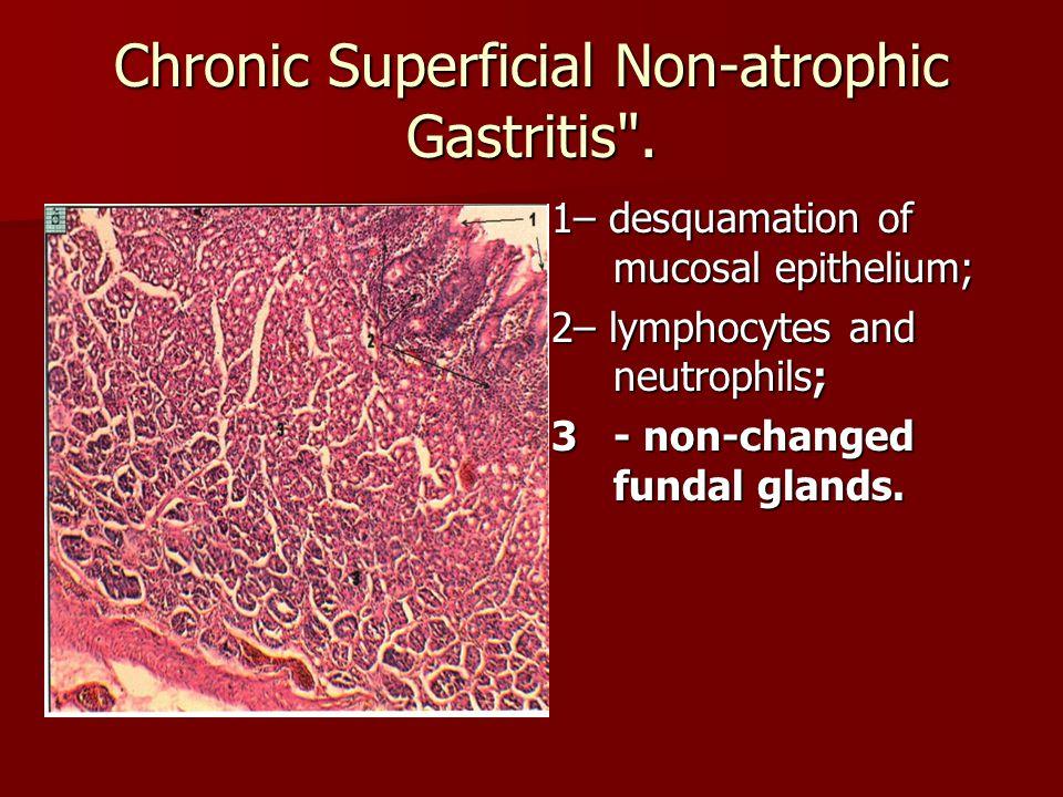 Chronic Superficial Non-atrophic Gastritis