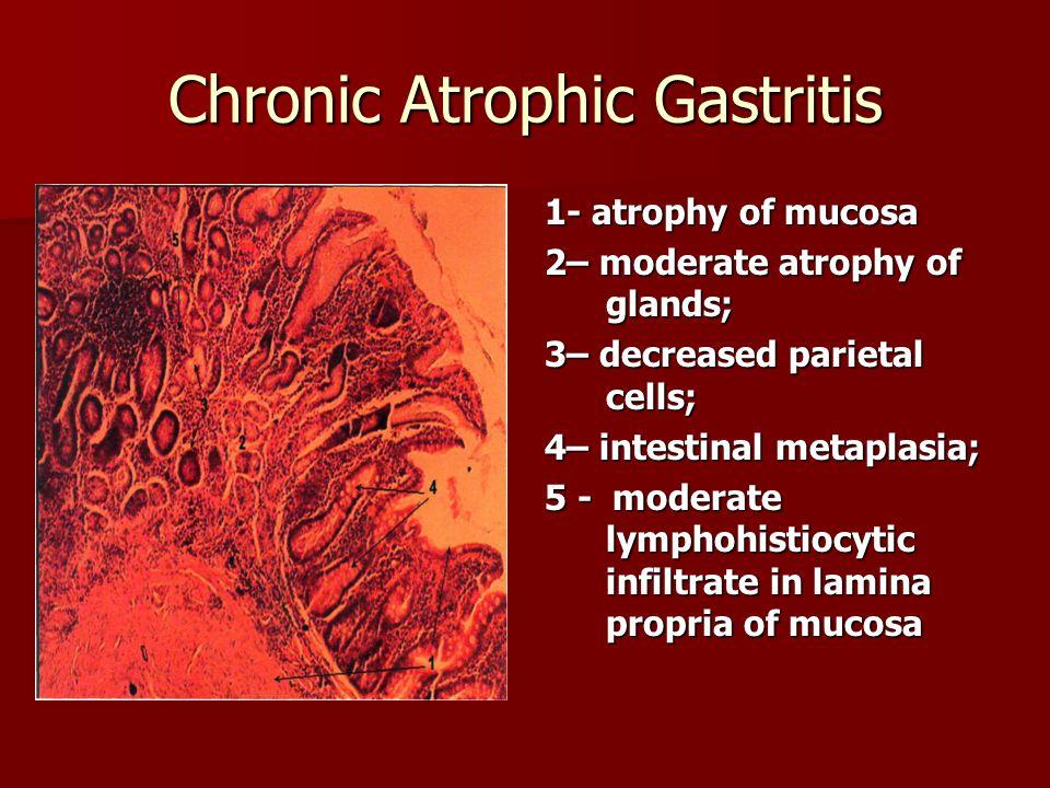 Chronic Atrophic Gastritis 1- atrophy of mucosa 2– moderate atrophy of glands; 3– decreased parietal cells; 4– intestinal metaplasia; 5 - moderate lym