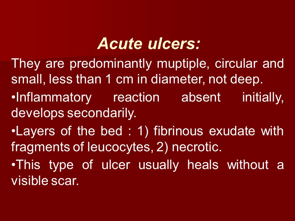 Acute ulcers: They are predominantly muptiple, circular and small, less than 1 cm in diameter, not deep. Inflammatory reaction absent initially, devel