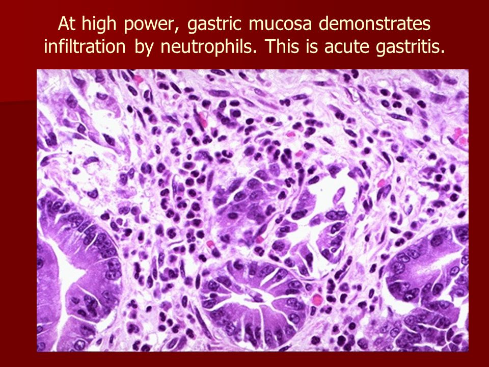 At high power, gastric mucosa demonstrates infiltration by neutrophils. This is acute gastritis.
