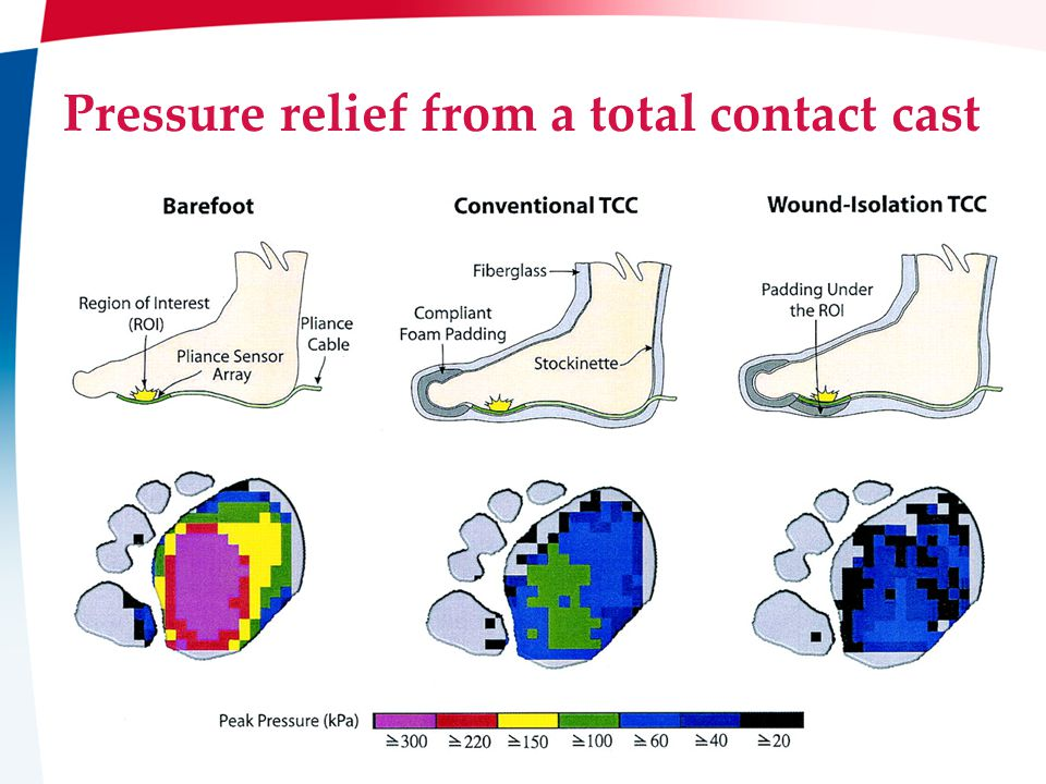 Page 15: Baker IDI Pressure relief from a total contact cast