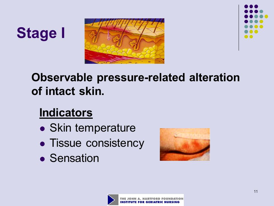 11 Stage I Observable pressure-related alteration of intact skin. Indicators Skin temperature Tissue consistency Sensation