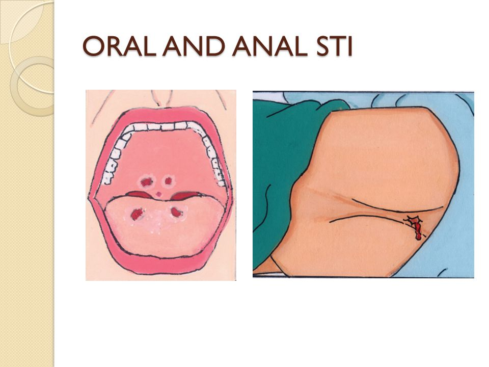 ORAL AND ANAL STI