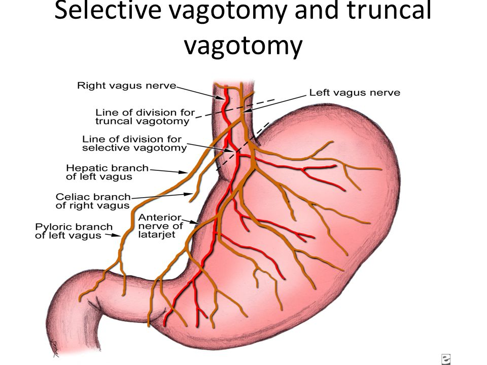 Antrectomy and truncal vagotomy for duodenal ulcer with Billroth I anastomosis.