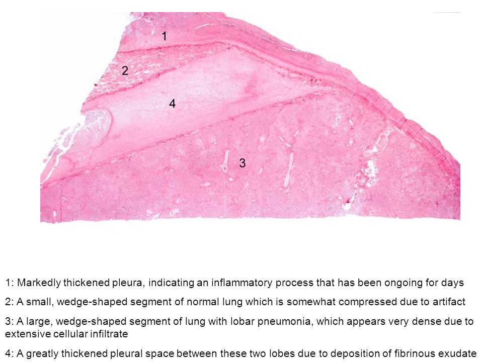 1: Markedly thickened pleura, indicating an inflammatory process that has been ongoing for days 2: A small, wedge-shaped segment of normal lung which