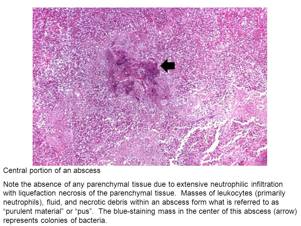 Central portion of an abscess Note the absence of any parenchymal tissue due to extensive neutrophilic infiltration with liquefaction necrosis of the