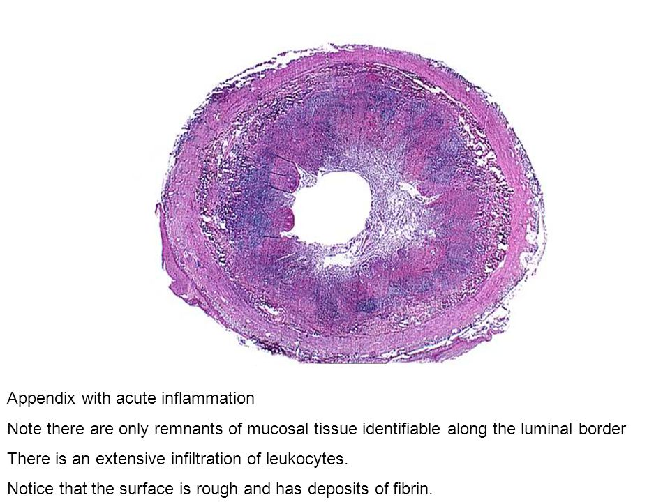 Appendix with acute inflammation Note there are only remnants of mucosal tissue identifiable along the luminal border There is an extensive infiltrati