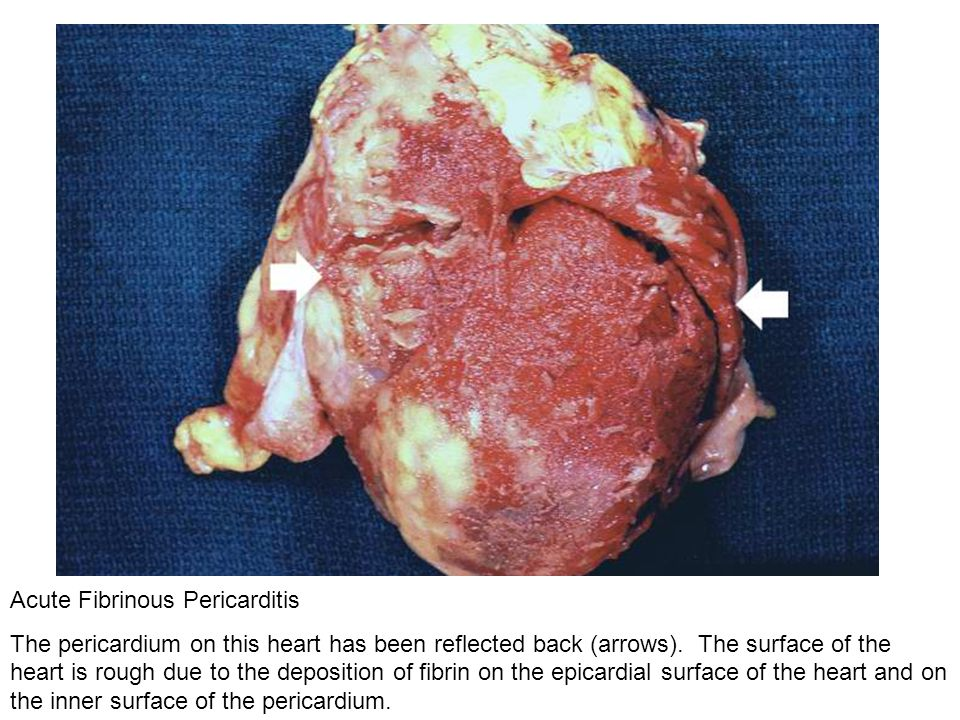 Acute Fibrinous Pericarditis The pericardium on this heart has been reflected back (arrows). The surface of the heart is rough due to the deposition o