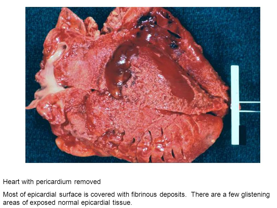 Heart with pericardium removed Most of epicardial surface is covered with fibrinous deposits. There are a few glistening areas of exposed normal epica