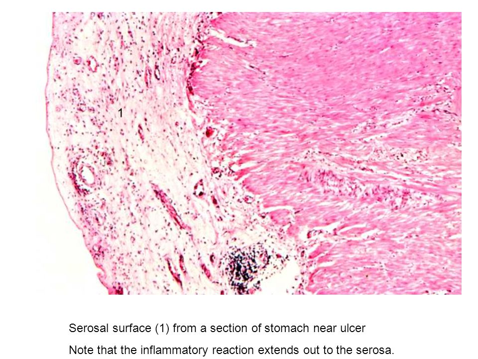 Serosal surface (1) from a section of stomach near ulcer Note that the inflammatory reaction extends out to the serosa.