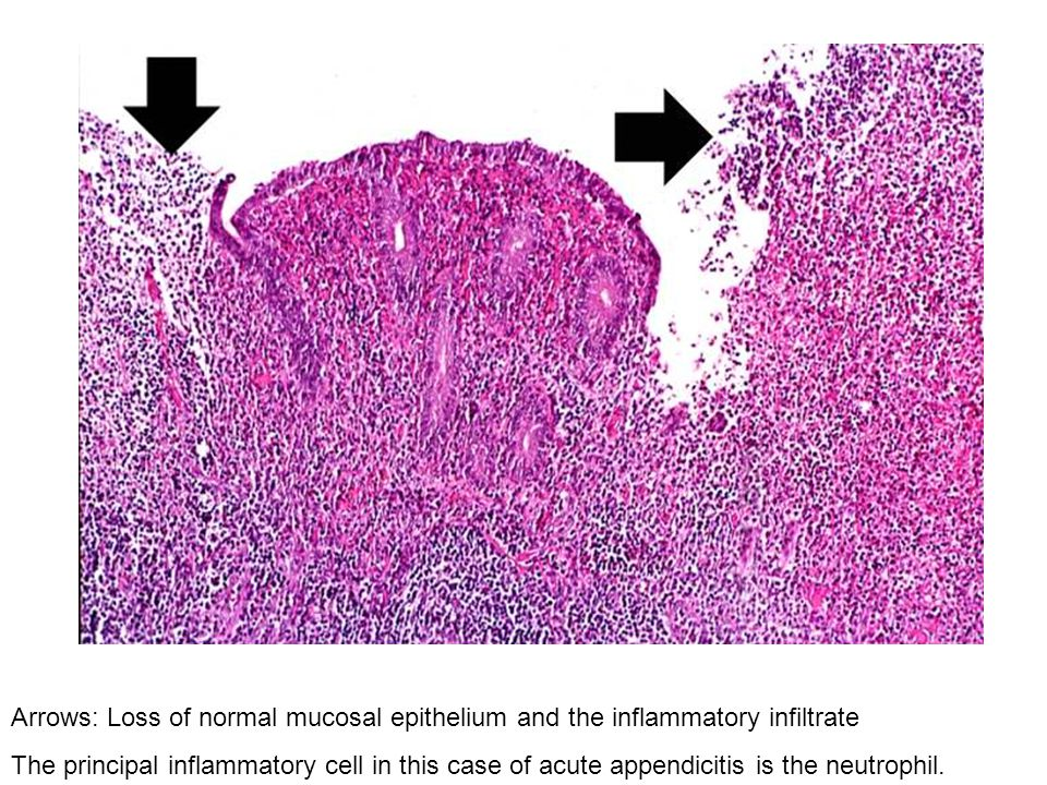 Arrows: Loss of normal mucosal epithelium and the inflammatory infiltrate The principal inflammatory cell in this case of acute appendicitis is the ne