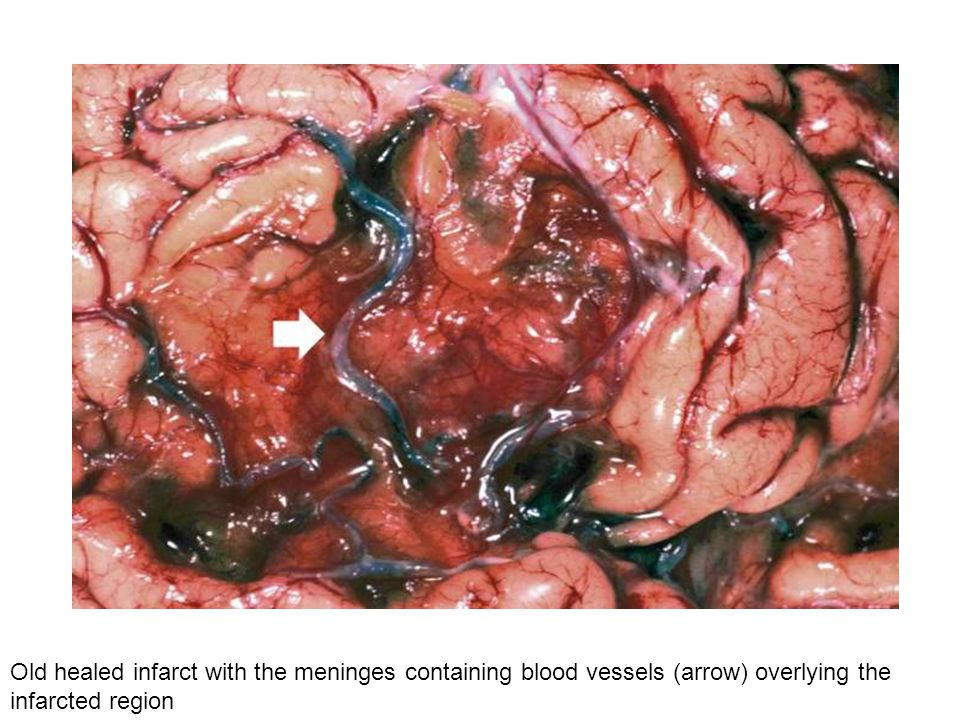 Old healed infarct with the meninges containing blood vessels (arrow) overlying the infarcted region