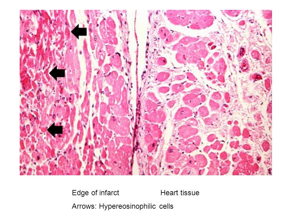 Edge of infarctHeart tissue Arrows: Hypereosinophilic cells